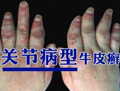 关节病型银屑病患者怎么护理