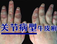 关节型银屑病有哪些危害