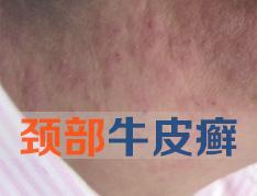 怎么去治疗颈部银屑病呢