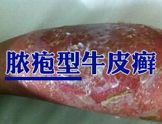 脓疱型牛皮癣的症状有哪些